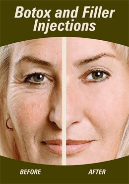 Botox and Fillers Injection