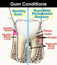 Gum Condition