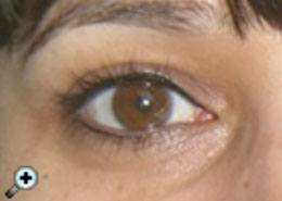 eyes_after