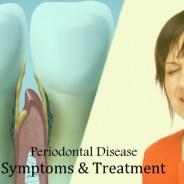 Peculiar Symptoms and Treatments of Periodontal Disease